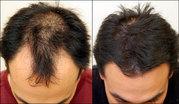 Kirkland 5% Minoxidil,  60мл. Для восстановления волос. Миноксидил